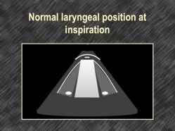 Normal laryngeal position at inspriation