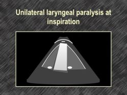 Unilateral laryngeal paralysis at inspiration