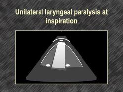 Unilateral laryngeal paralysis at inspiration